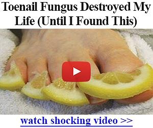 FASTEST Way to Get Rid of Toenail Fungus